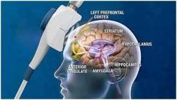 درمان سردرد و میگرن توسط بهترین متخصص مغز و اعصاب در تهران | مجله پوست و مو