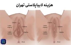 هزینه لابیاپلاستی تهران | مجله پوست و مو